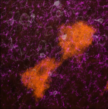 Microscopy image of extracellular vesicles being taken up by microglia